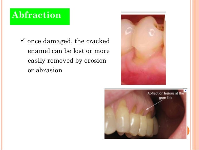 hard tooth tissue reduction