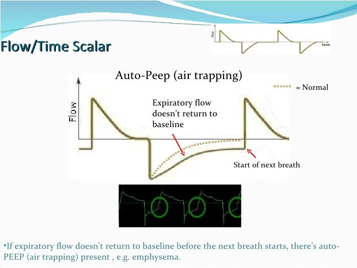 Flow/Time Scalar Auto-Peep (air trapping) If expiratory flow doesn't return to baseline before the next breath starts, the...