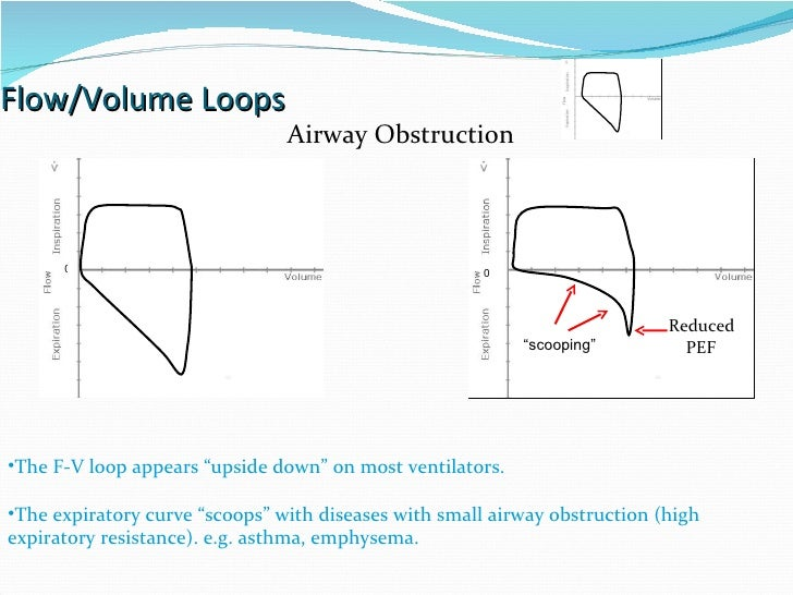 """Flow/Volume Loops 0 0 Reduced  PEF """" scooping"""" The F-V loop appears """"upside down"""" on most ventilators. The expiratory curv..."""