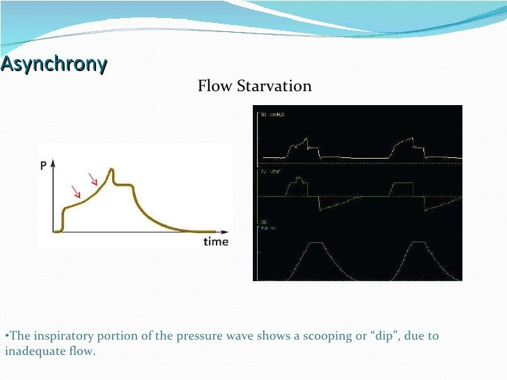 """Asynchrony Flow Starvation The inspiratory portion of the pressure wave shows a scooping or """"dip"""", due to inadequate flow."""