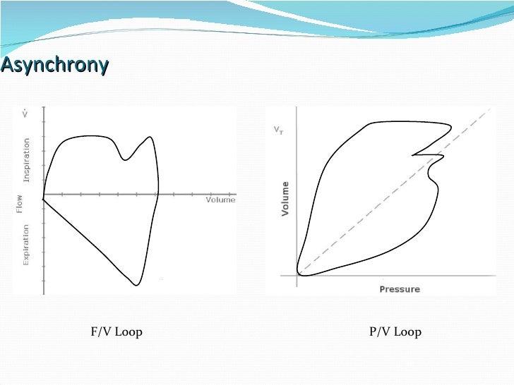 Asynchrony F/V Loop P/V Loop