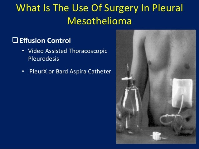 The Role of Surgery in Malignant Pleural Mesothelioma | Mesothelioma …