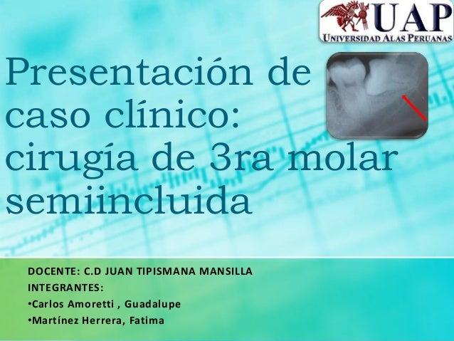 Presentación decaso clínico:cirugía de 3ra molarsemiincluidaDOCENTE: C.D JUAN TIPISMANA MANSILLAINTEGRANTES:•Carlos Amoret...