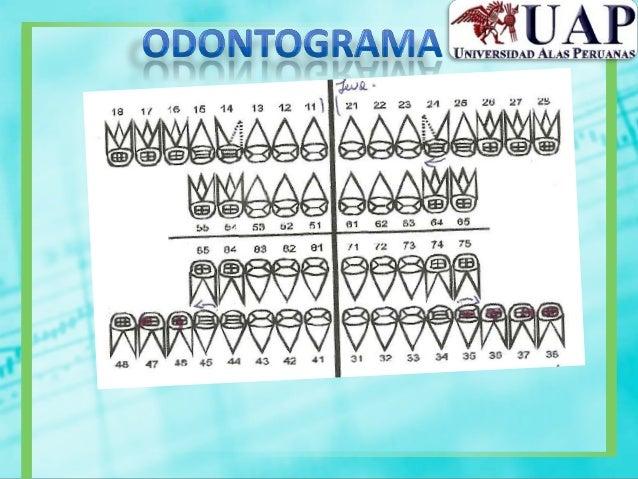 •Tiempo de coagulación ysangría•Tiempo d protrombinaactivada (TP) ytromboplastina (TTP)