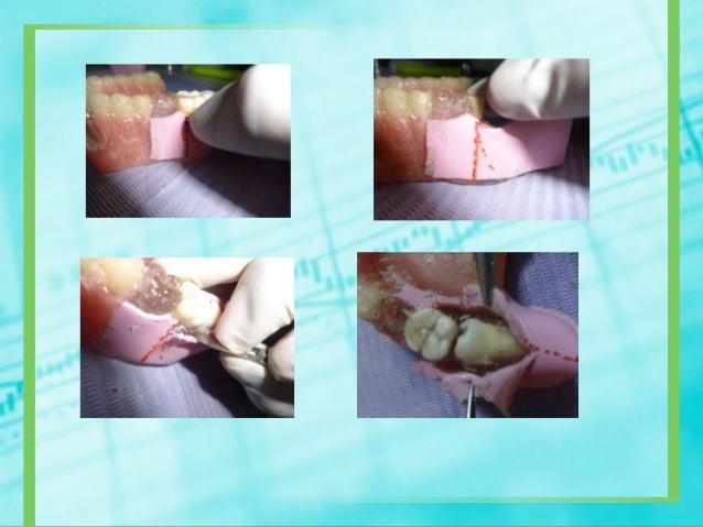 Osteotomía y odontosecciónpropiamente dicha