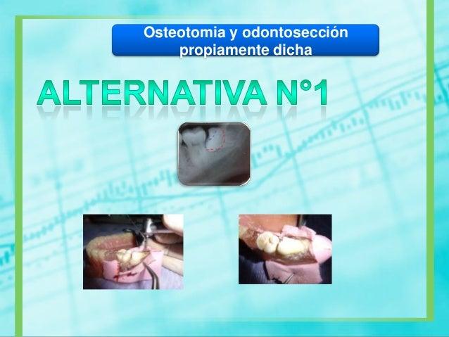 Legrado – Remodelado paredes alveolares –Eliminación de trozos fracturados – Hemostasia– Resección de tejidos – Sutura.LIM...