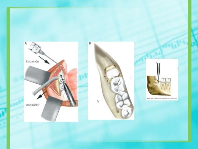 MEDICAMENTOSCONTROL DETRATAMIENTOPre- operatorio: naproxeno de 550 mg 20 minutos antes dela intervención quirúrgicaPost- o...