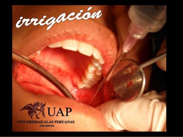 tercera molar inferior horizontal