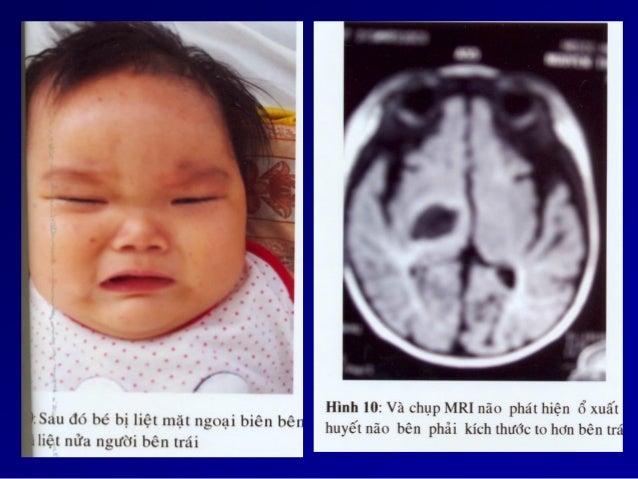 Chẩn đoán . Một bé trai đến tuổi biết đi, bị té ngã và sưng đau khớp gối …. . Một bé gái tuổi dậy thì, hành kinh n...