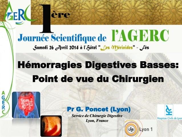 Hémorragies Digestives Basses:  Point de vue du Chirurgien  Pr G. Poncet (Lyon)  Service de Chirurgie Digestive  Lyon, Fra...