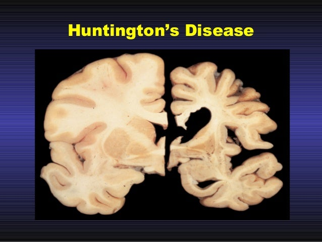 Huntington\'s Disease, Potential Therapies