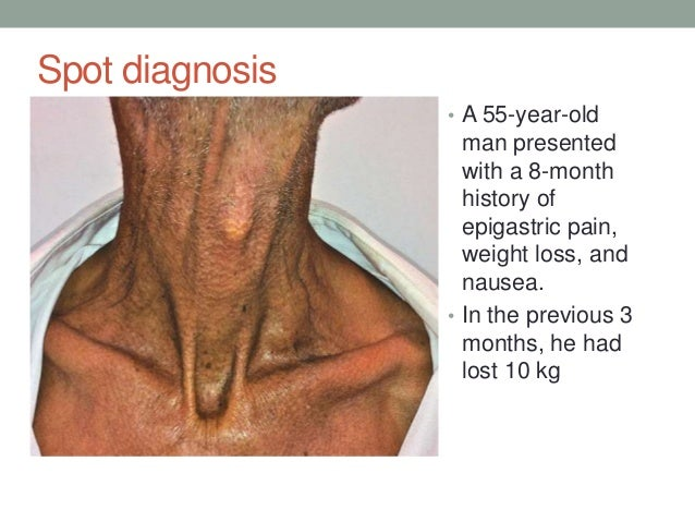 enlarged thyroid steroids