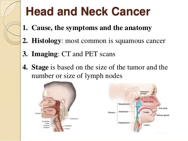 an analysis of the symptoms and treatment of larynx cancer Throat cancer may affect the larynx  symptoms, and treatment for throat cancer through dana-farber's head and neck oncology dana-farber cancer institute.
