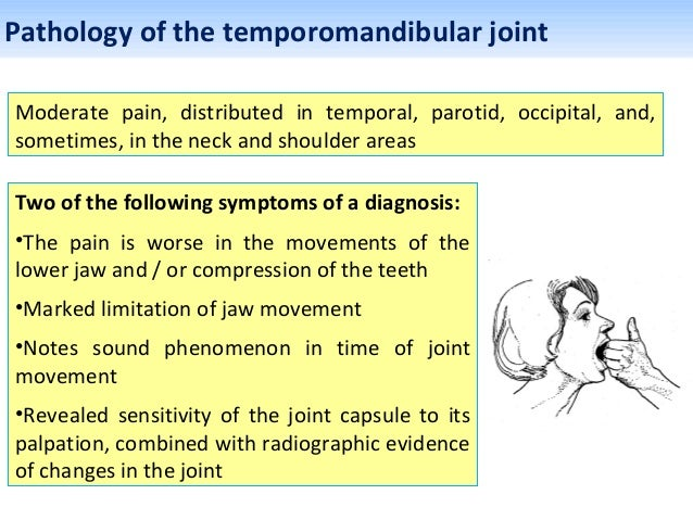 Trileptal For Facial Pain