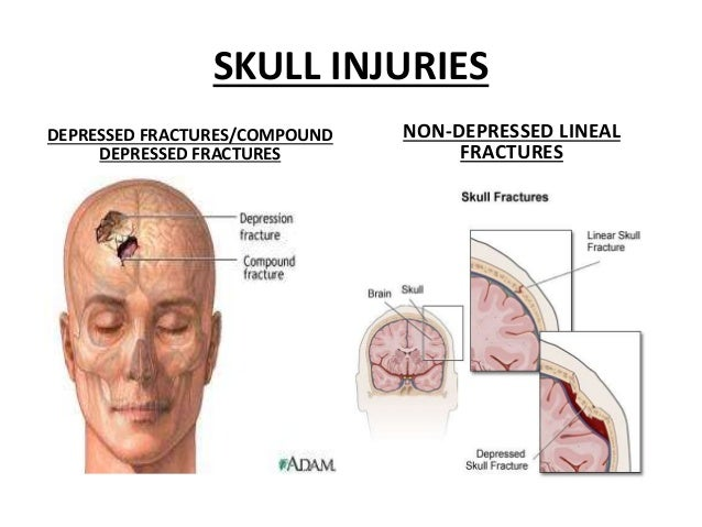 Symptoms Of Head Injury After Car Accident