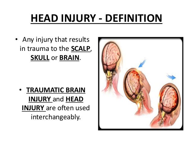 head injuries Coverage from the new york times about head injuries in football and the  effects of repeated concussions on current and former nfl players.