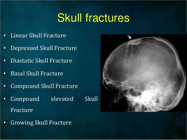 Linear Skull Fracture : Head injury and medical tratment