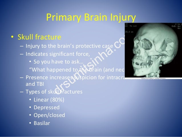 Primary Brain Injury • Skull fracture – Injury to the brain's protective case – Indicates significant force, • So you have...