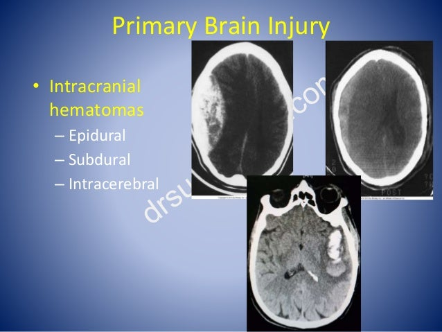 Primary Brain Injury • Intracranial hematomas – Epidural – Subdural – Intracerebral