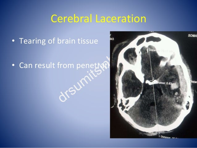 Cerebral Laceration • Tearing of brain tissue • Can result from penetrating or blunt injury