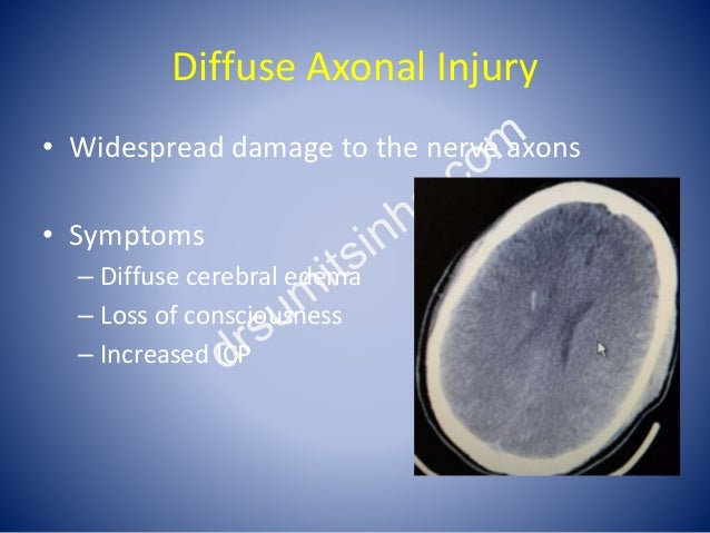 Diffuse Axonal Injury • Widespread damage to the nerve axons • Symptoms – Diffuse cerebral edema – Loss of consciousness –...