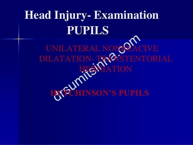 Head Injury- Examination PUPILS UNILATERAL NONREACIVE DILATATION- TRANSTENTORIAL HERNIATION HUTCHINSON'S PUPILS