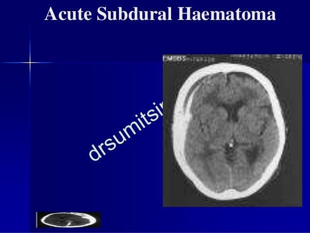 Chronic Subdural Haematoma ■ Presents several weeks after a trivial trauma. ■ A simple burr hole evacuation curative. ■ Ma...