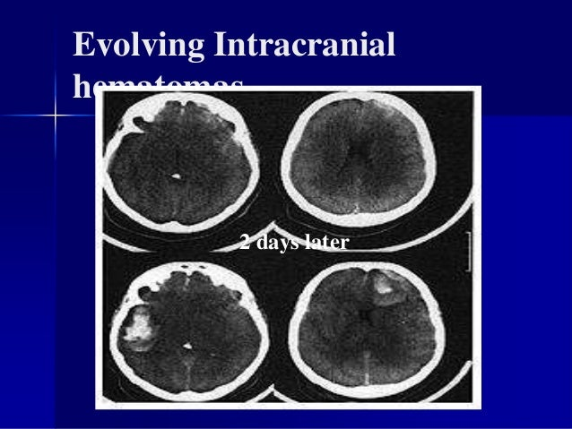 Diffuse Axonal Injury Non-operable lesion