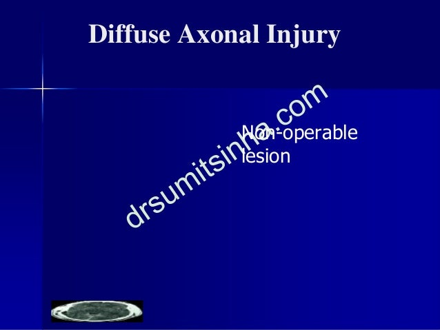 PRIMARY BRAIN STEM INJURY ■ 5-10% of all serious HI ■ True (Primary)/As part of DAI ■ Rent/tear/laceration/ Transection- S...