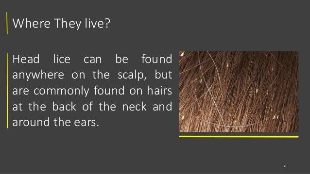 Head Lice Louse