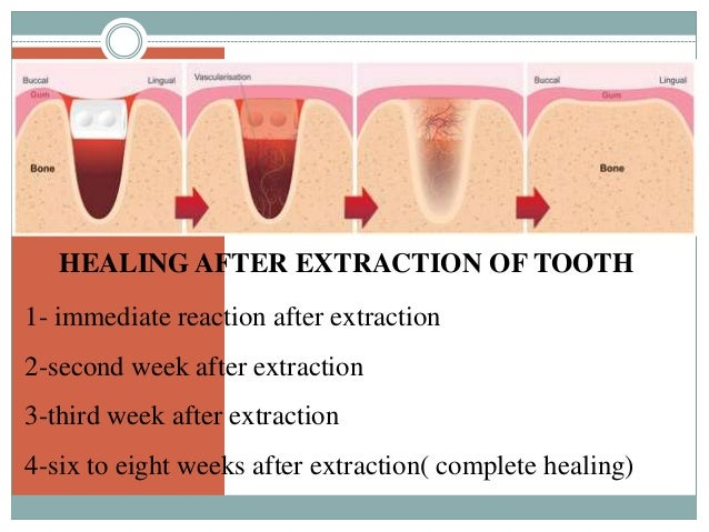Healing of-oral-wounds - copy