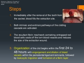 Healing Of Extraction Wound