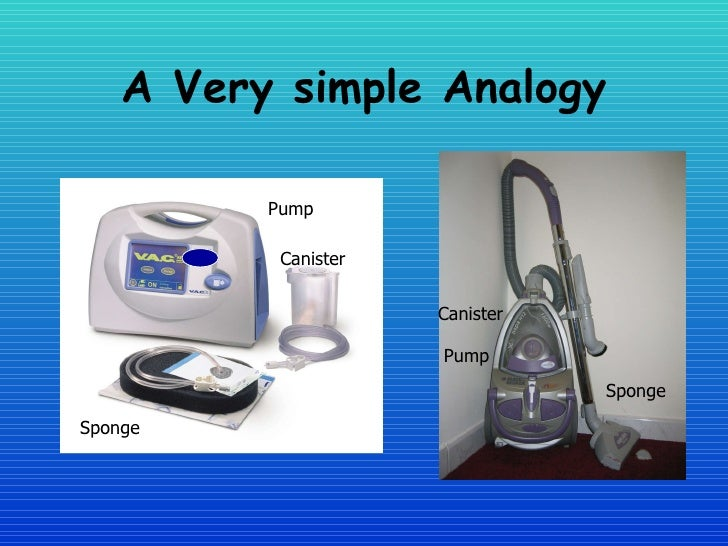 Healing The Wound The Vac System In Woundcare