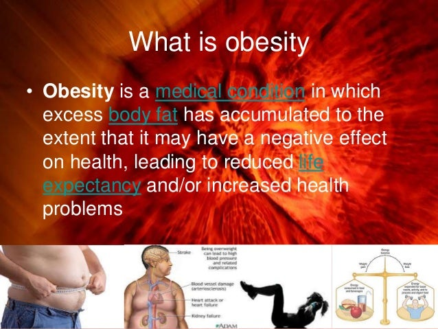 summary the war on obesity is a big fat flop Now a group of canadian doctors argues for a junk-food tax in the american journal of public health on the grounds that the costs of obesity arising from individuals' poor nutritional choices are borne by society as a whole through taxes, lost productivity and an overburdened healthcare system.