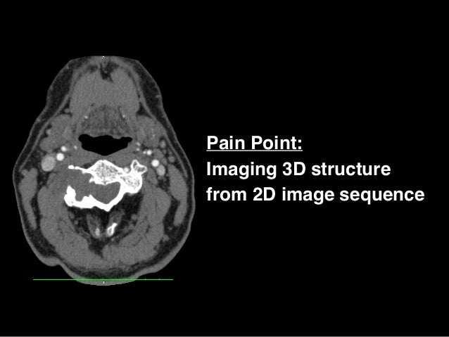 Pain Point: Imaging 3D structure from 2D image sequence