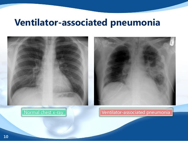"ventilator assoicated pneumonia Reducing ventilator-associated pneumonia in neonatal intensive care unit using ""vap prevention bundle"": a cohort study."