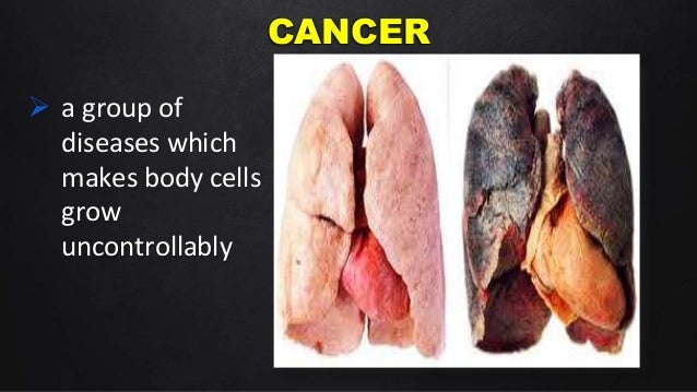the dangers of cigarette smoking Read the key facts about smoking and cancer risk, and find the supporting  evidence from  tobacco is the single biggest cause of cancer.