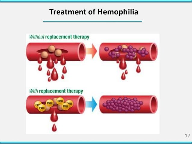the causes symptoms and management of hemophilia Hemophilia is an inherited bleeding disorder in which you lack or have low levels of clotting factors this keeps your blood from clotting.