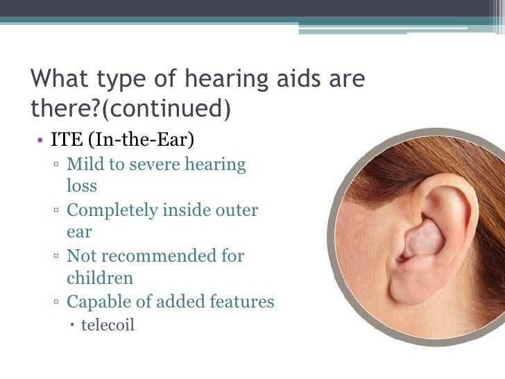 What type of hearing aids are there?(continued)<br />ITE (In-the-Ear)<br />Mild to severe hearing loss<br />Completely ins...