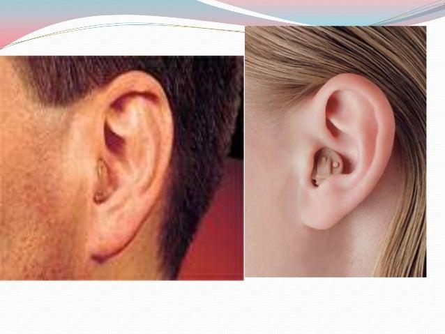 Bone conduction hearing aid  A bone conduction vibrator is placed on the mastoid  bone behind the ear.