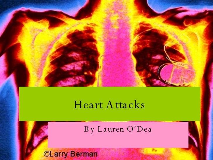 Heart Attacks By Lauren O'Dea