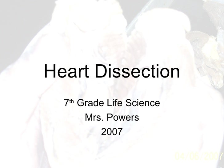 Heart Dissection 7 th  Grade Life Science Mrs. Powers 2007
