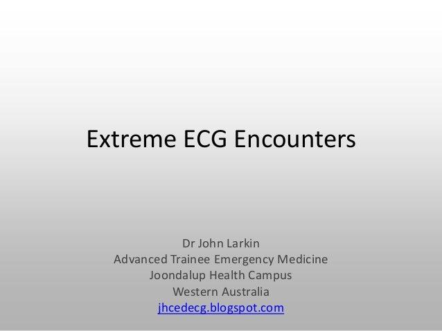 Extreme ECG Encounters Dr John Larkin Advanced Trainee Emergency Medicine Joondalup Health Campus Western Australia jhcede...