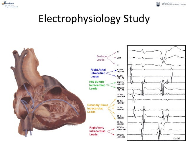 Cardiac electrophysiology studies and ablations for ...