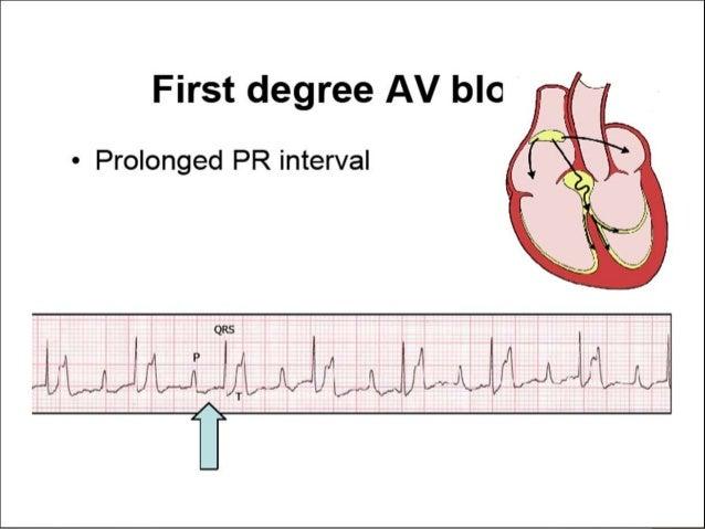 ... myocardial infarction; 13. Second Degree Heart Block ...