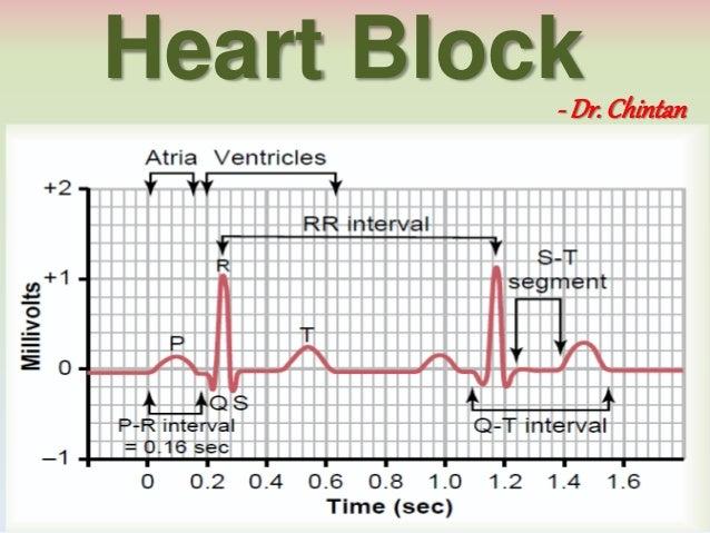 Heart Block- Dr. Chintan