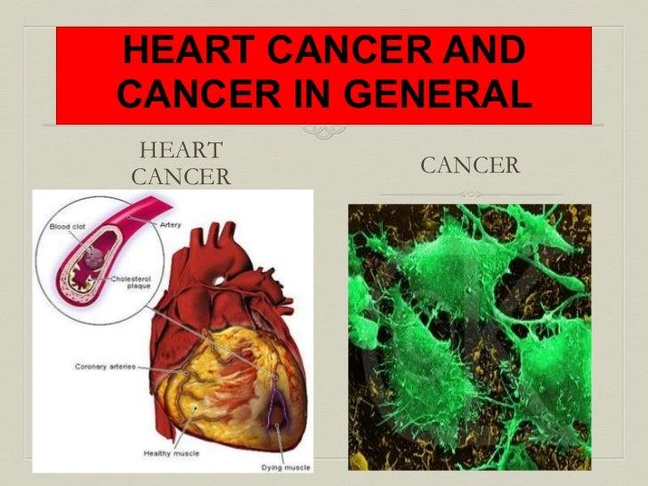 Heart cancer (1)