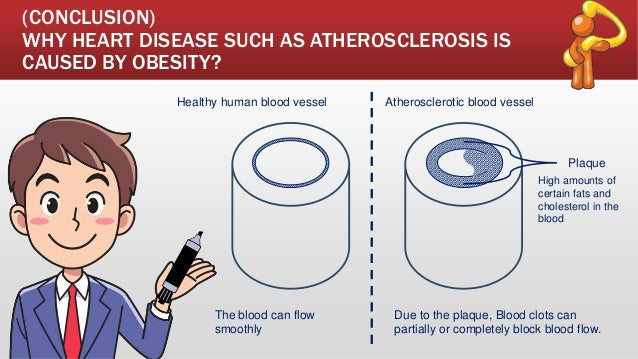 (CONCLUSION) WHY HEART DISEASE SUCH AS ATHEROSCLEROSIS IS CAUSED BY OBESITY? Healthy human blood vessel Atherosclerotic bl...