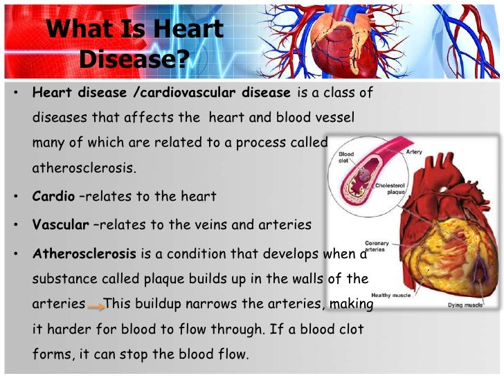 cardio vascular disease I739 peripheral vascular disease z8249 family history of ischemic heart disease icd-10 coding for cardiovascular disease for cardio iq® test offering.
