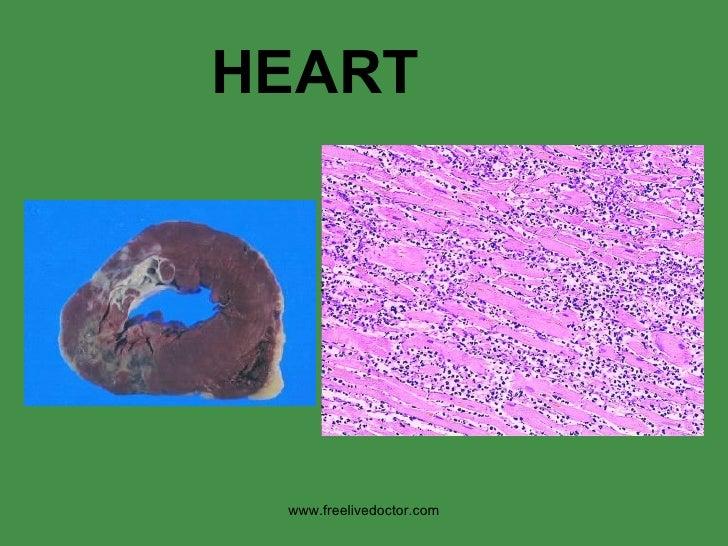 HEART www.freelivedoctor.com